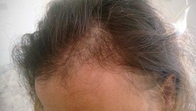alopecia