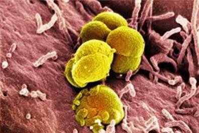 blenorragia