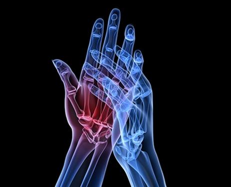 Malattie Reumatiche: Come si curano? Sintomi e Rimedi